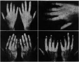 Chirology-Hand-reading